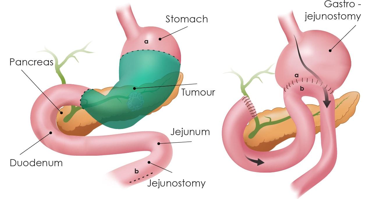 Partial gastrectomy