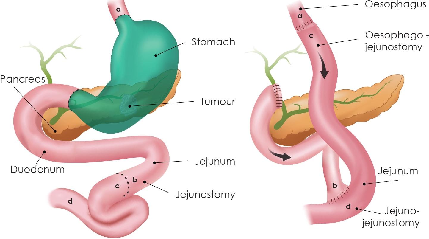 Full Gastrectomy